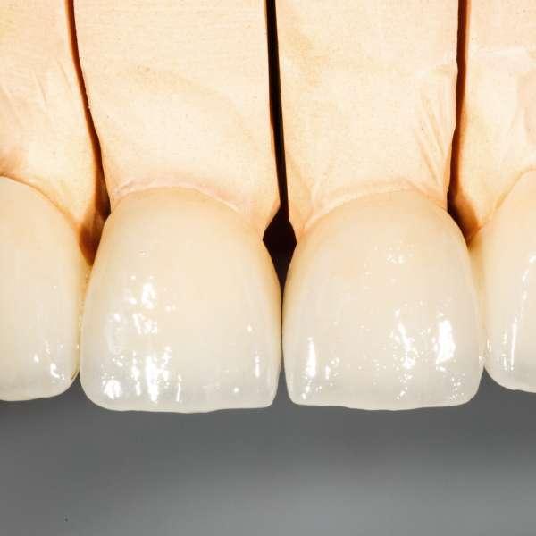 Dentalceramicbridge696390500_4739x1874.jpeg
