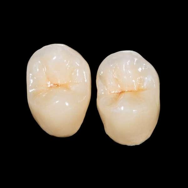 Dentalceramiccrowns664939760_3912x2936.jpeg